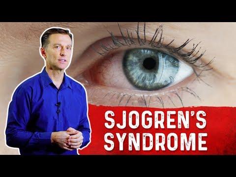 What is Sjogren's Syndrome?