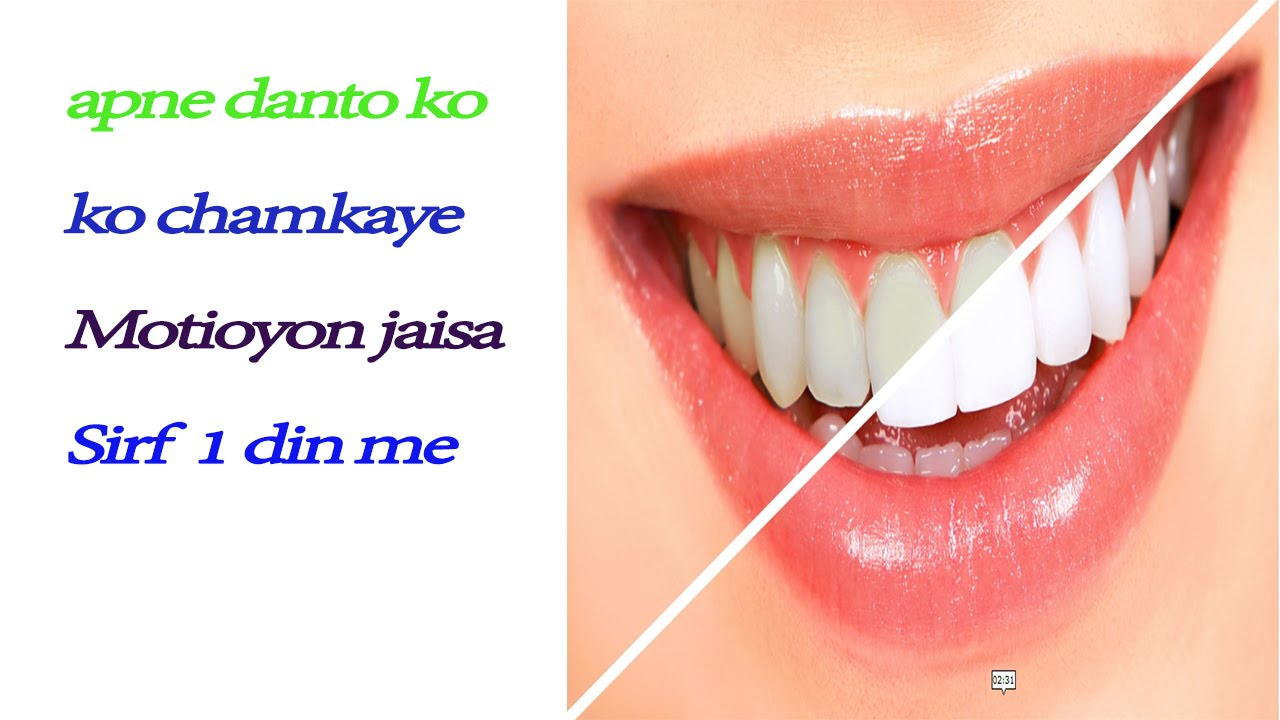 How I Whiten My Teeth Within 2 Min Without Baking Soda Home Remedies