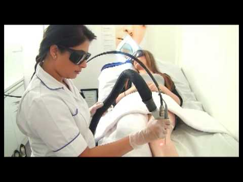 Cynosure Elite Laser Hair Removal At Premier Laser Clinic