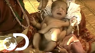 Repeat youtube video My Shocking Story - The Parasitic Twin