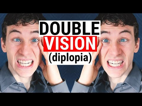 What Causes DOUBLE VISION (Diplopia) | 5 Common Causes For Diplopia | Doctor Eye Health