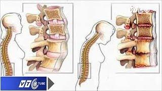 Bệnh loãng xương: Âm thầm và nguy hiểm   VTC
