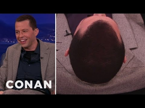 Jon Cryer Comes Clean On His Roll-On Hair