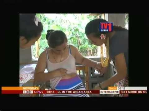 Stigmata Girl (Samoa) - BBC News - 7th April 2016
