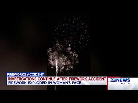 Fireworks Accident   9 News Perth