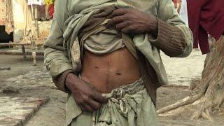 Pakistan, hub del traffico illegale legato al trapianto di reni