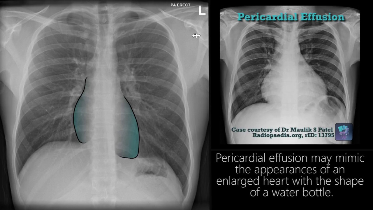 Learning chest radiology: imaging of respiratory disorders: m2.