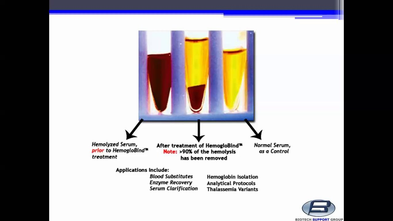 how to prepare serum and plasma from blood