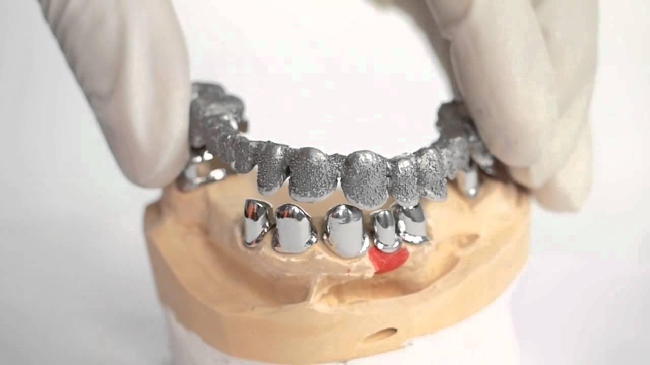 K dental lab telescopic youtube
