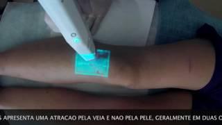De veias de de médica para aranha luz caneta azul terapia