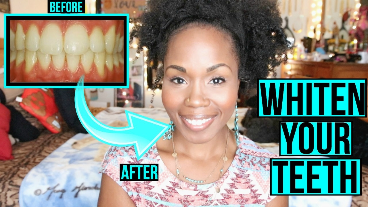 How To Whiten Teeth Fast Naturally Simple Cleaning Teeth
