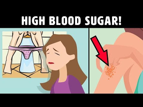 8 Signs Of High Blood Sugar Levels