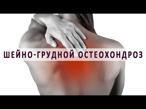 остеохондроз шейного отдела позвоночника корешковый синдром