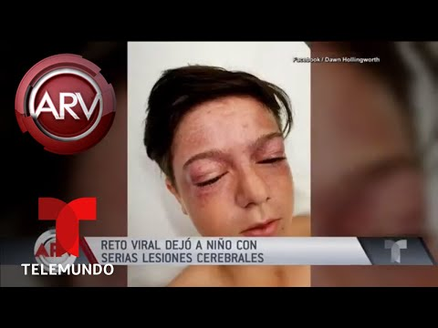 Peligroso Reto Viral Dejó A Niño Con Lesiones Cerebrales | Al Rojo Vivo | Telemundo