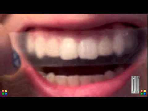 طريقة استخدام لاصقات كرست لتبييض الاسنان Youtube