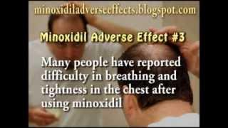 Minoxidil Adverse Effects