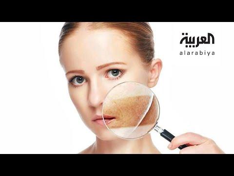 صباح العربية | كيف نتخلص من تصبغات الجلد؟  - نشر قبل 51 دقيقة
