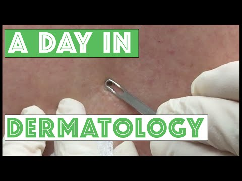 A Day In Dermatology: Various Dermatologic Procedures Including Extractions