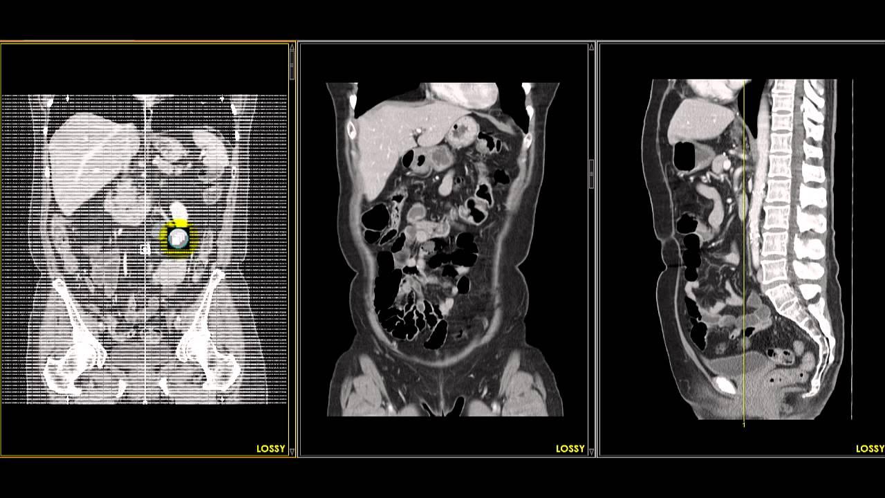 tc abdomen supramesocolico - YouTube