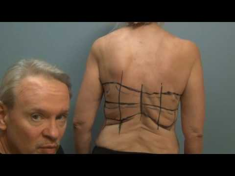 Dr  Hunstad Performs The Bra Line Back Lift