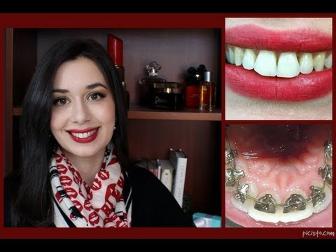 Incognito Lingual Braces Treatment Final Reveal and