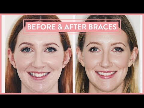 Before After Braces Lingual Braces Jaw Surgery Experience Part 4 Youtube