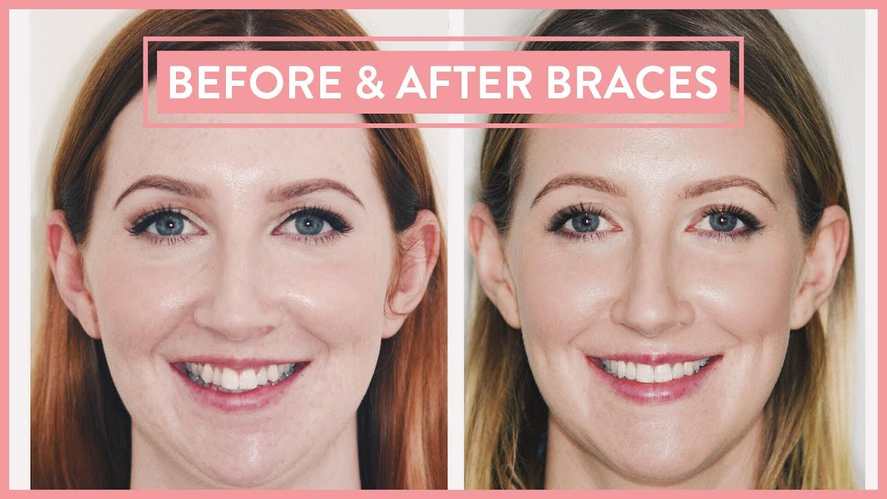 Before After Braces Lingual Braces Jaw Surgery Experience