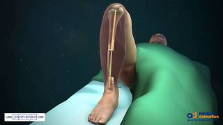 Tibial Bone Transport Over an Intramedullary Nail Using Cable and Pulleys