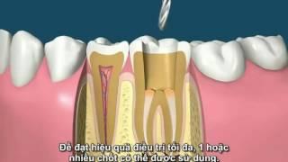 Các bước điều trị tủy răng- sub Việt by Thái