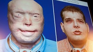 Meet The Man With The Most Extensive Face Transplant EVER!