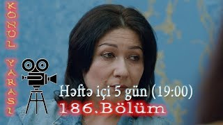 Könül yarası (186-cı bölüm) - TAM HİSSƏ