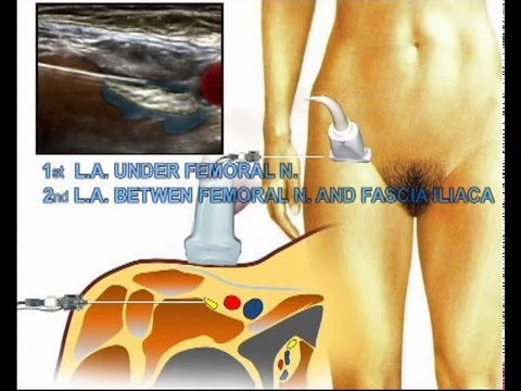 all you need to know about femoral nerve block - youtube, Muscles