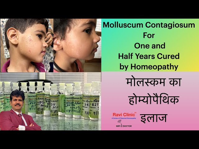 Molluscum Contagiosum for one and Half year Getting Cured in a week