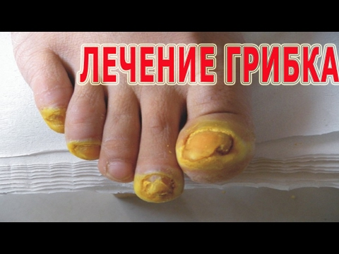 Микозы стоп - симптомы, лечение, профилактика, причины