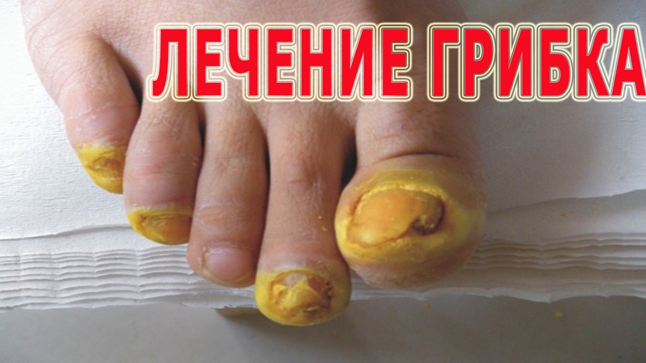 Лечение грибка ногтей народными средствами лучшие методы и рецепты