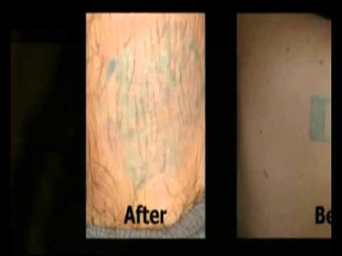 Tattoo Removal Cream Youtube
