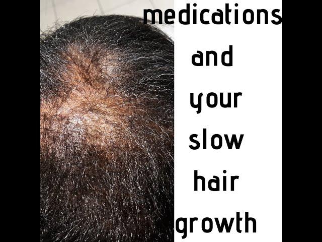 Medications and hair loss