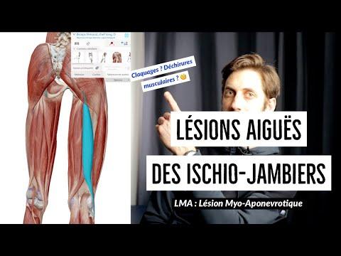 Lésions aigües des ischio-jambiers (LMA) dans le sport : explications par Kiné