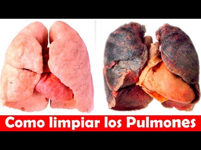 Como Limpiar los Pulmones de un Fumador - Como Desintoxicar los Pulmones