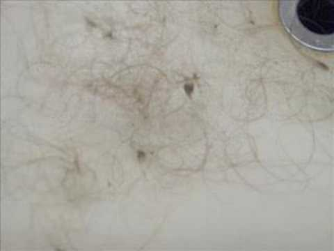 dread wax causes hair loss and mold