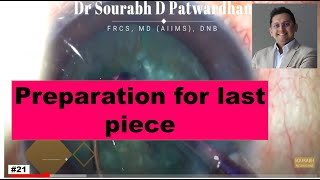 Dr Sourabh D Patwardhan FRCS MD AIIMS speaks about thought process ...