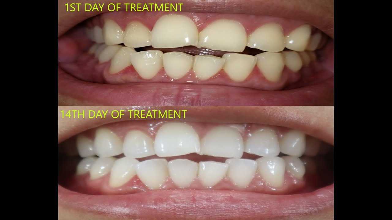 Arc Whitening Treatment Update Youtube