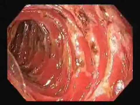 multiple duodenal ulcers - youtube, Human Body