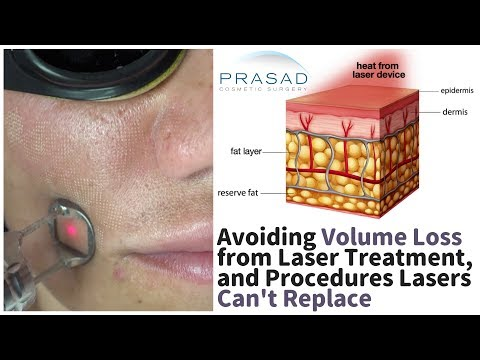 Avoiding Facial Volume Loss from Laser/ Radiofrequency Treatments, and Procedures They Can't Replace