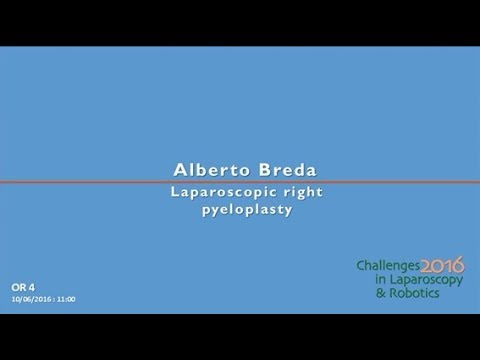 CILR 2016 - Alberto Breda - Laparoscopic right pyeloplasty