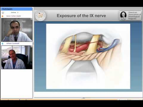 Microvascular Decompression Surgery for Glossopharyngeal Neuralgia