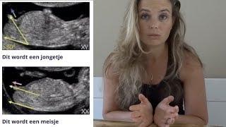 Bakerpraatjes en geslachtsbepaling! Jongen of meisje? | Zwanger zijn | JAY-JAY'S VLOG #11