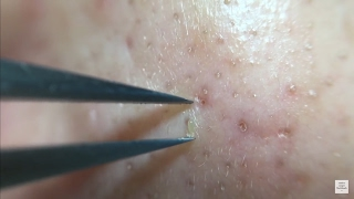 Repeat youtube video 角栓63 nose blackheads★Tweezers only★