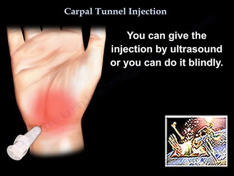 Carpal Tunnel Syndrome | Dr. Sahil Kohli.