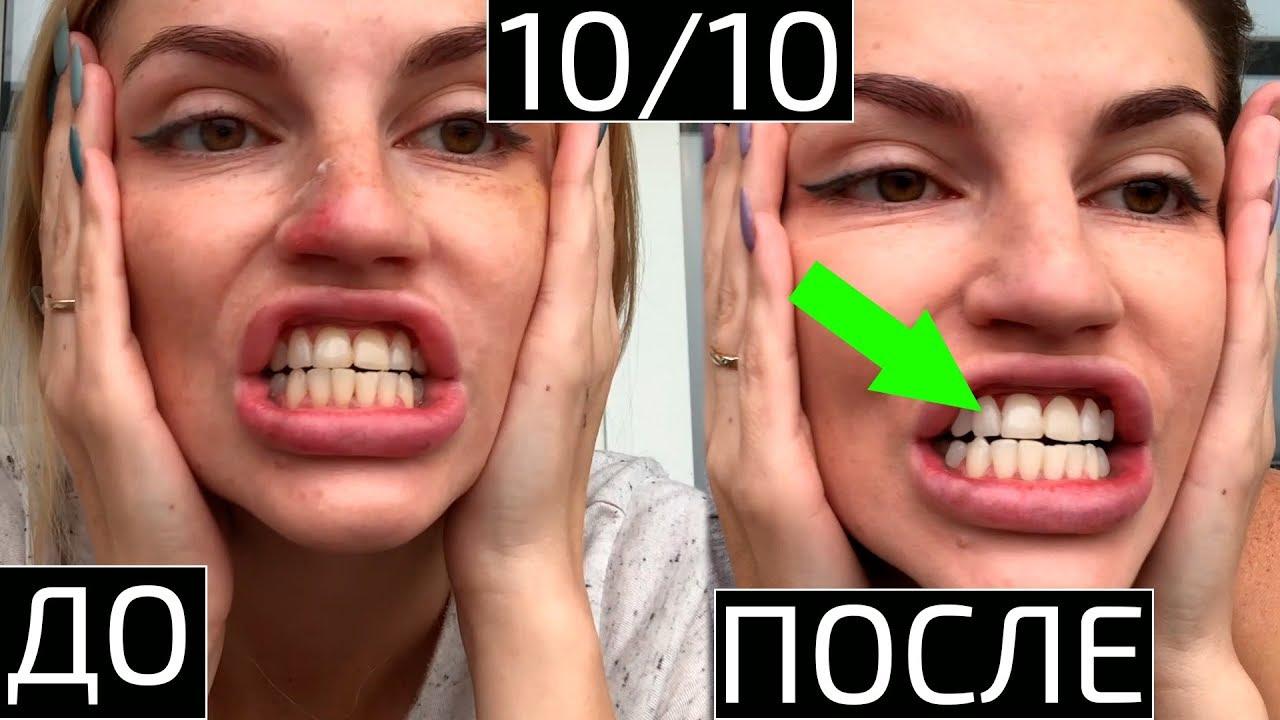Отбелить зубы,убрать кровоточивость дёсен за 20 дней.Отбеливаем зубы кокосовым маслом и белой глиной